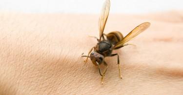 picaduras de abeja
