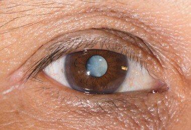 cataratas en los ojos