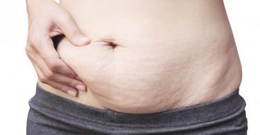 estrías después del embarazo
