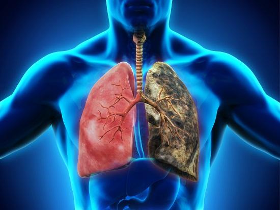 gráfico de bronquitis