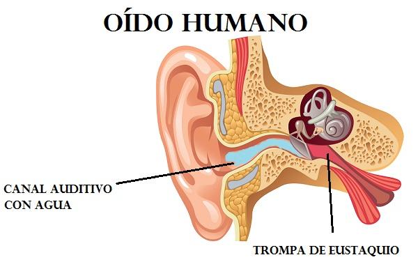 como cascar el oido cuando si entra agua