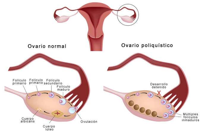 ovario poliquístico