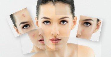 piel maltratada piel aclarada rostro cara