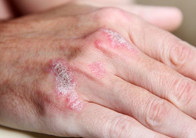 psoriasis en las uñas y otras partes del cuerpo