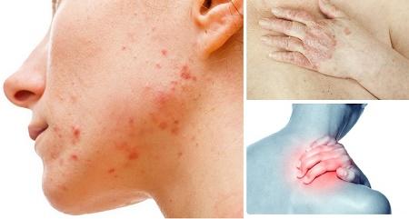 toxinas acné psoriasis
