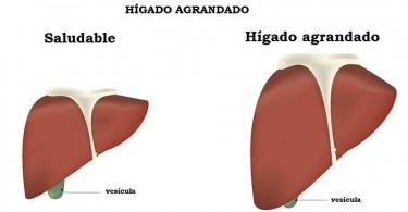 Hígado agrandado