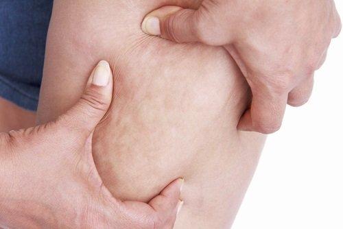 grasa en las piernas