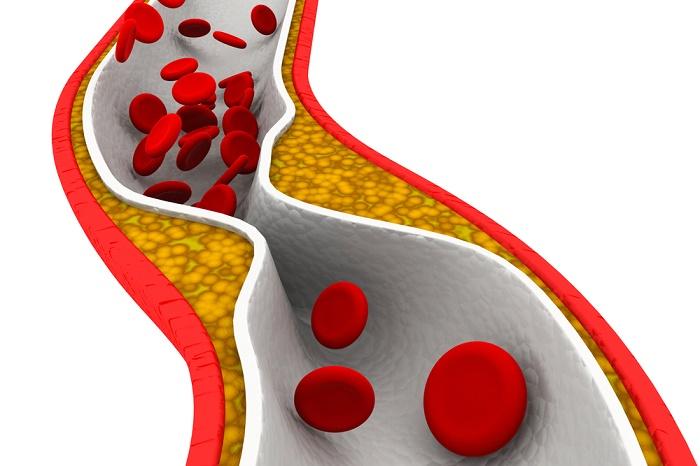 placa de colesterol