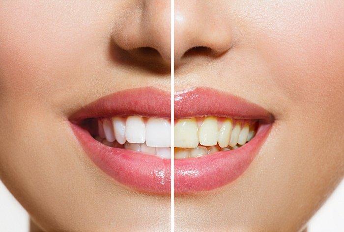 C mo blanquear los dientes en 3 minutos - Como blanquear los dientes en casa ...