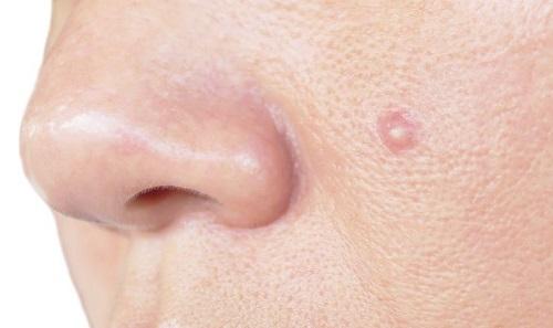 tratar el acné con sal