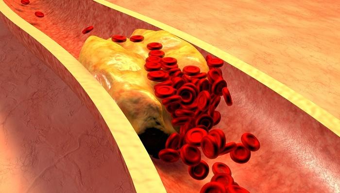 reducir la oxidación del colesterol
