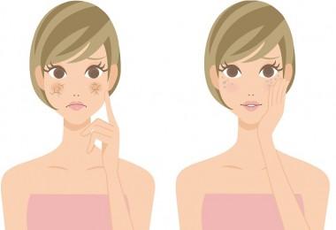 piel seca y acne cuales son sus causas