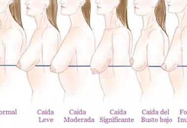 sagging-breasts