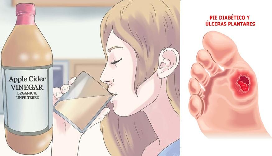 diabetes tipo 1 y vinagre de manzana