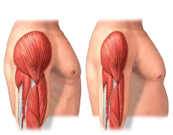 atrofia muscular o pérdida de masa muscular