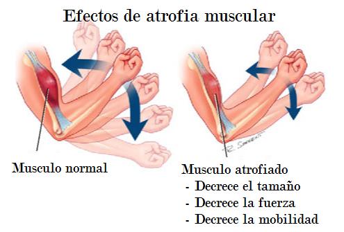 Cuándo llega la atrofia muscular y por qué razón? | Fitness