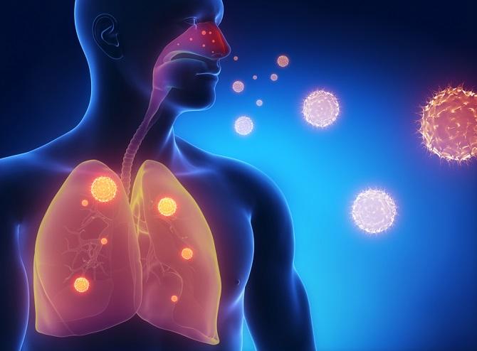 Gráfico que demuestra el cuerpo humano y los pulmones ante la presencia de SIDA