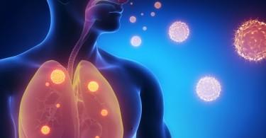 Síntomas del sida y cómo prevenirlo