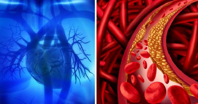 enfermedades al corazón