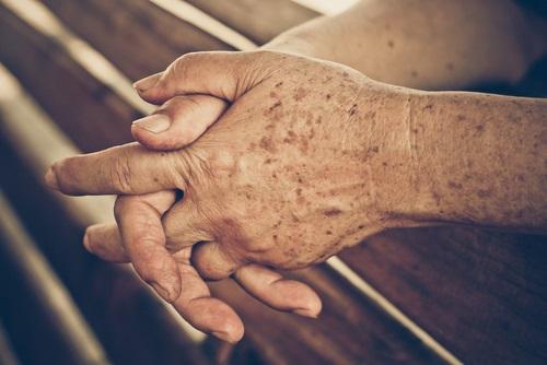 manchas en las manos producto de la edad
