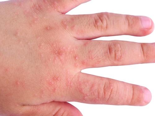 probelmas en la piel erupción cutanea