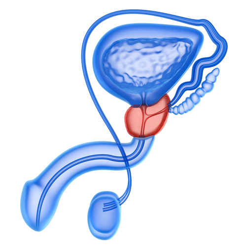 signos cáncer de próstata