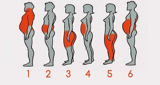 6-tipos-de-obesidad
