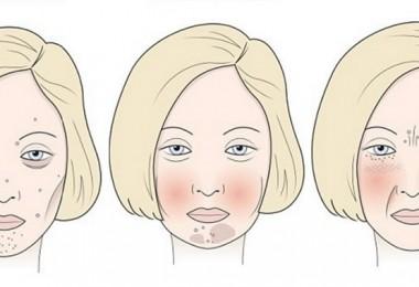 Azúcar, leche y gluten pueden afectar la apariencia del rostro