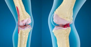 Bajar y subir de peso afecta la calidad de tus huesos