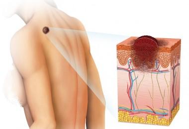 Tipos de cáncer en la piel y cómo detectarlos a tiempo
