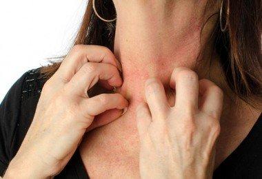alergias en el cuerpo
