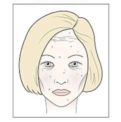 apariencia del rostro por el azúcar