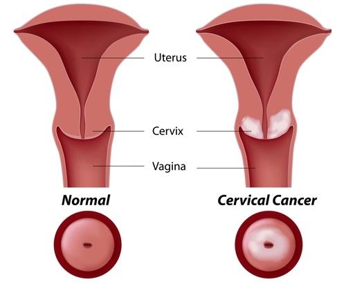 cáncer cervical