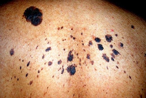 cáncer en la piel