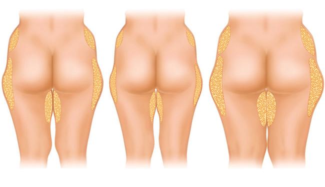 lipoescultura en hombres antes y despues de adelgazar