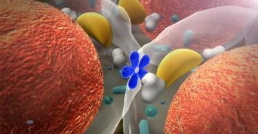 causas colesterol alto