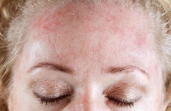 causas de la rosácea y como tratarla naturalmente