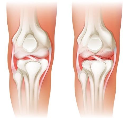problemas en los huesos por el aumento de peso
