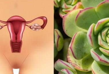 quistes ovarios útero2