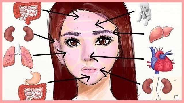 mapa facial acné medicina china