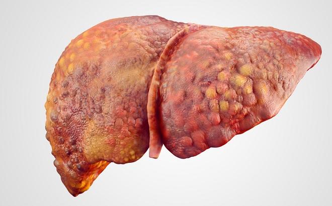 tomar medicamentos sin supervisión puede dañar el hígado