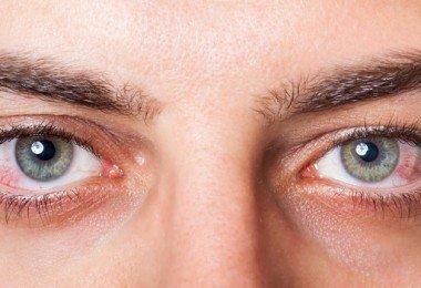 tratar los ojos irritados