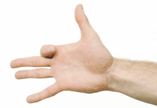 Dolor en el dedo indice de la mano derecha