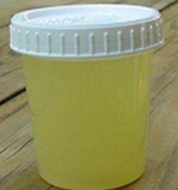 orina turbia color