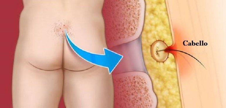 dolor en la espalda baja por sinus o quiste pilonidal