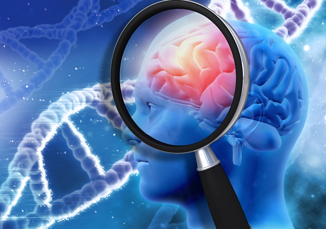 Cómo saber si padeces de Alzheimer