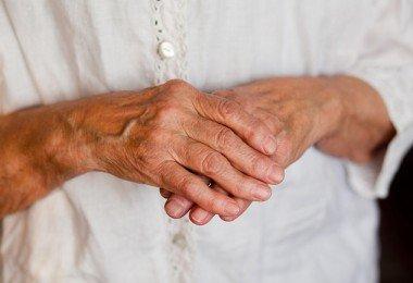 artritis en manos y muñecas