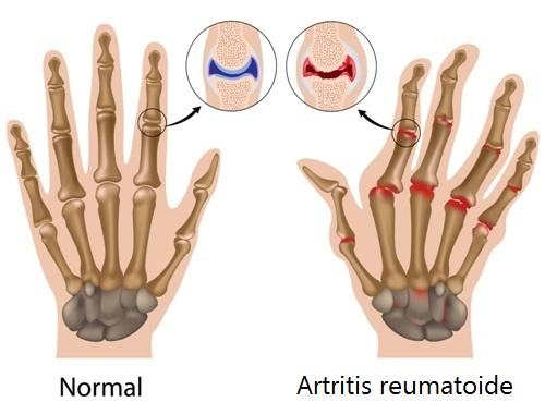 dolor de artritis en las manos