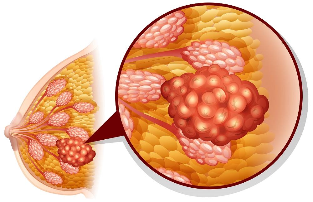 alimentos que causan cáncer