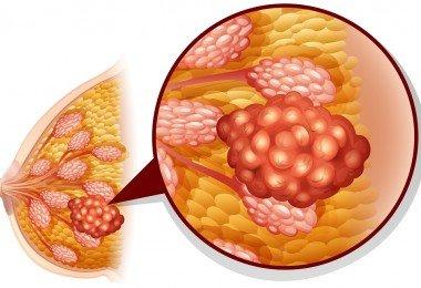 cáncer de seno